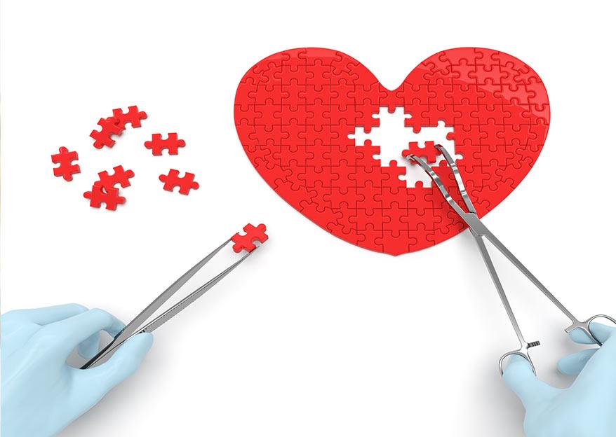Cardiochirurgia  Brescia